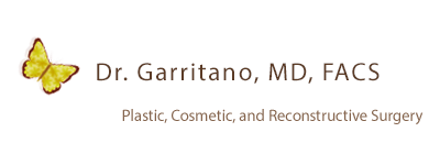 Woman who received services with Dr. Garritano, MD FACS